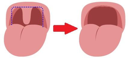 軟口蓋形成術